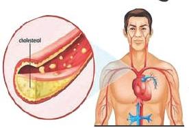 cholesterol _1