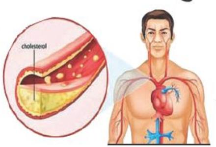 गुड कोलेस्ट्रॉल चांगले मानले जात असले तरी त्याचाही दुष्परिणाम होऊ शकता